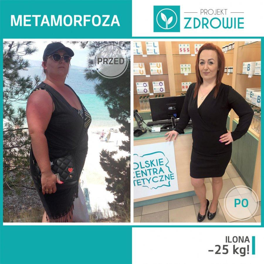 Niesamowita przemiana Pani Ilony która schudła 25 kg w Centrum Dietetycznym Projekt Zdrowie!