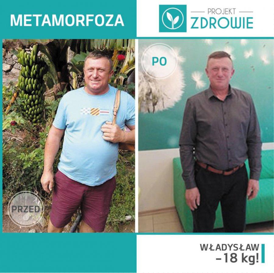 Pan Władysław schudł 18 kg w Projekt Zdrowie!