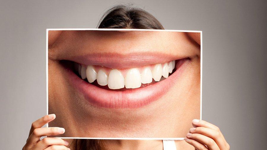 Skuteczne sposoby wybielania zębów