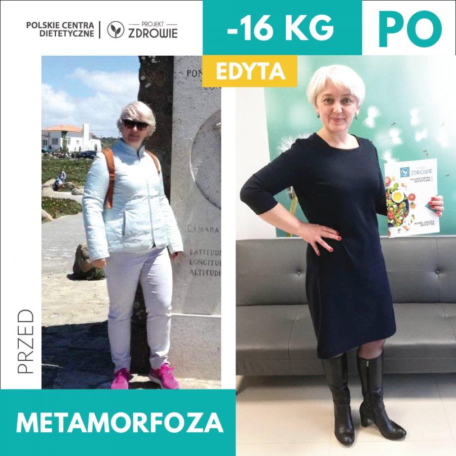 Niezwykła przemiana Pani Edyty, która schudła 16 kg w Centrum Dietetycznym Projekt Zdrowie !