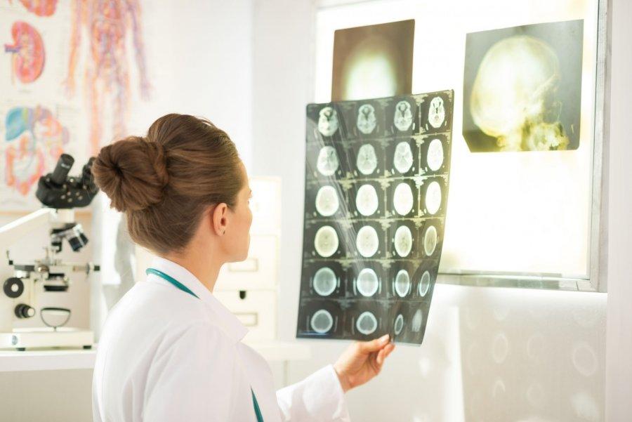Kiedy musisz wybrać się do neruologa?
