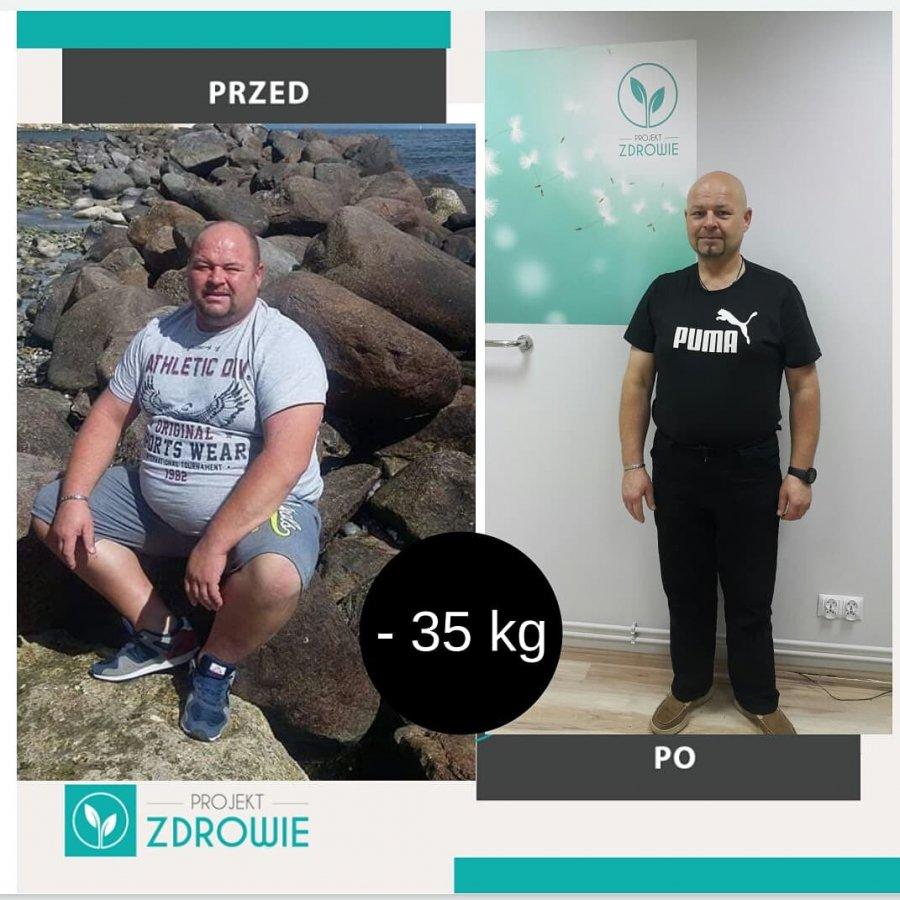 Pan Grzegorz schudł 35kg z Projekt Zdrowie!