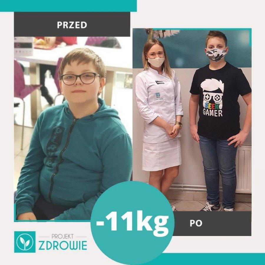 Wiktor schudł 11 kg z Projekt Zdrowie Chrzanów!