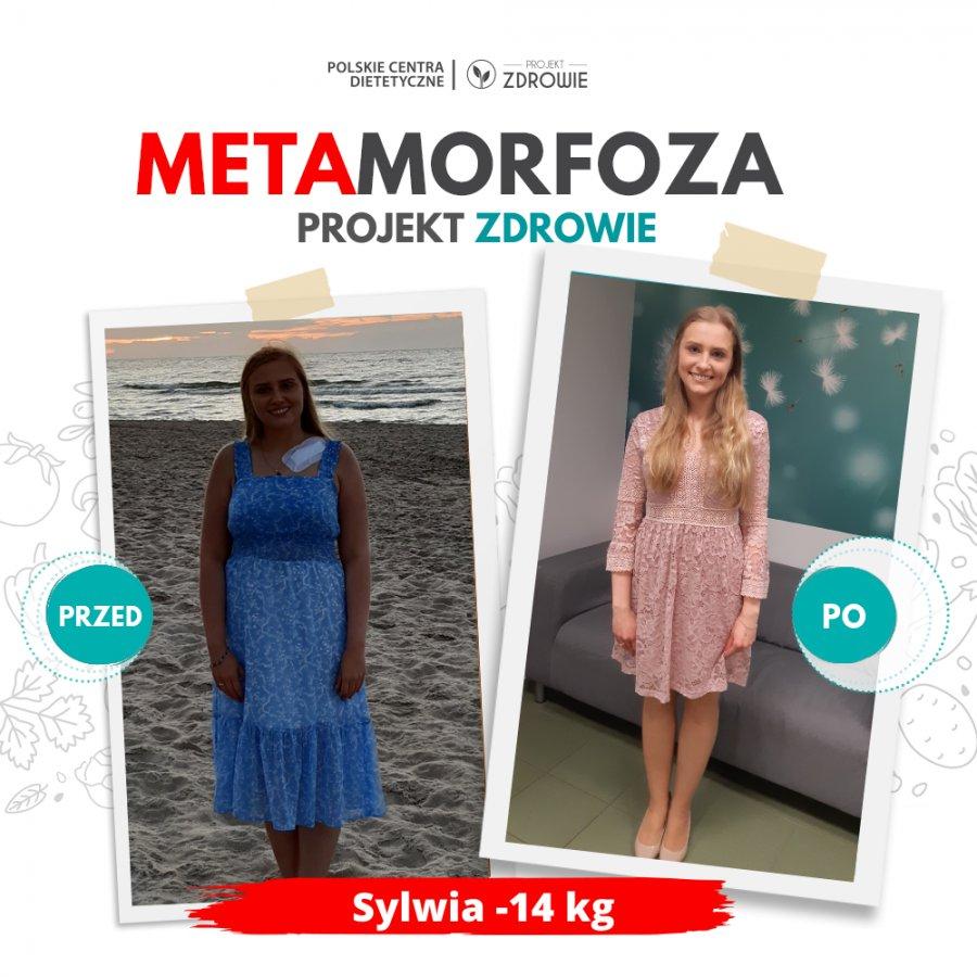 Pani Sylwia schudła 14kg w Projekt Zdrowie!