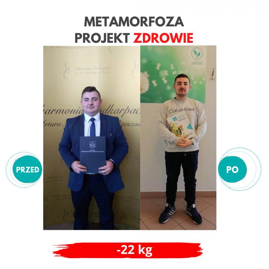 Pan Jakub schudł 22 kg z Projekt Zdrowie!