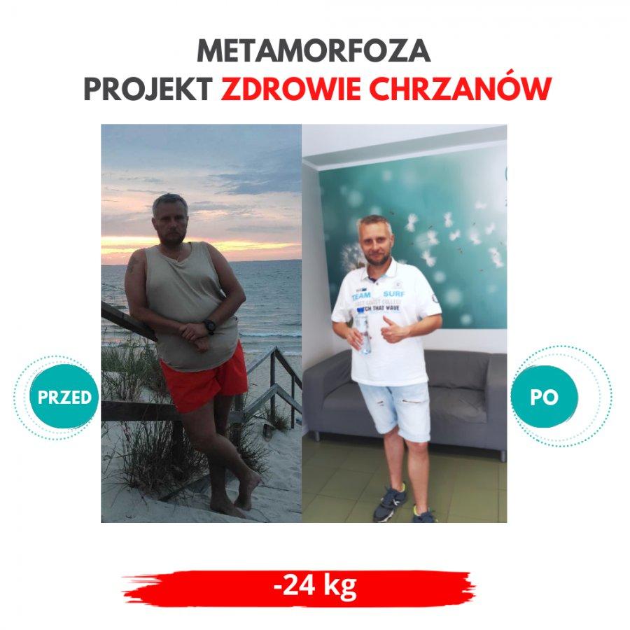 Spektakularna metamorfoza w Projekt Zdrowie! Pan Rafał schudł 24 kilogramy!